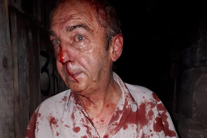 Жестокое избиение пожилого соседа возмутило жильцов столичного дома (ФОТО, ВИДЕО)