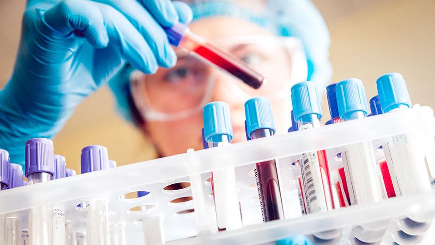 В Молдове ежегодно регистрируется 800 новых случаев ВИЧ