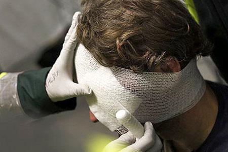 В Бендерах подросток проломил поленом череп отцу своей приятельницы