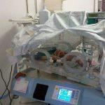 В Кишиневе в животе 5-месячного малыша обнаружили его брата-близнеца
