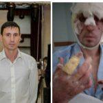 Житель села в Криулянском районе получил страшные ожоги при пожаре и лишился жилья