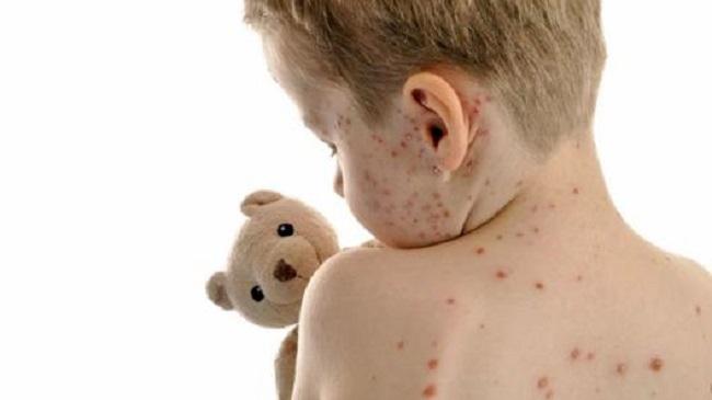 У четырёх детей в Кишинёве подозрение на корь: ни один не был вакцинирован