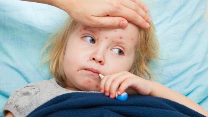 Число больных корью в Молдове выросло на 8 человек за 4 дня