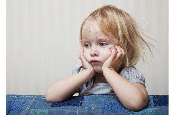 Новый случай подозрения на корь зарегистрирован в Окнице у 6-летнего ребёнка