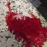 Авария в Глодянах: переходившего дорогу мужчину сбил автомобиль