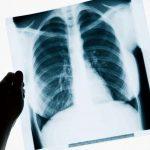 В Бельцах зарегистрировали ещё один случай туберкулёза у ребёнка