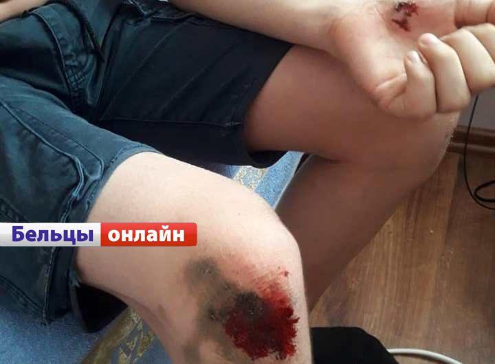 В Бельцах стая бродячих собак покусала 12-летнего мальчика (ФОТО)