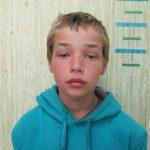 Сбежал из больницы: в Приднестровье разыскивается воспитанник школы-интерната