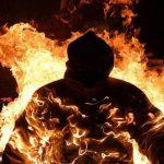 Житель Бешалмы госпитализирован с серьёзными ожогами