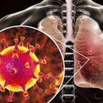 Еще 27 случаев подозрения на коронавирус в Молдове. Результаты станут известны сегодня