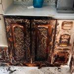 Тираспольчанка перепутала спирт с водой и попала в больницу с ожогами