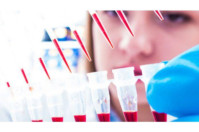 В прошлом году почти у 1 500 молдаван диагностировали гепатит