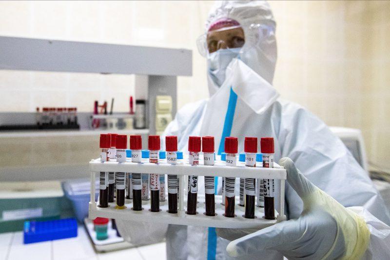 Учёные обнаружили новое последствие пандемии COVID-19
